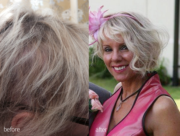 before-after-volumiser-hair-solutions-near-cardiff